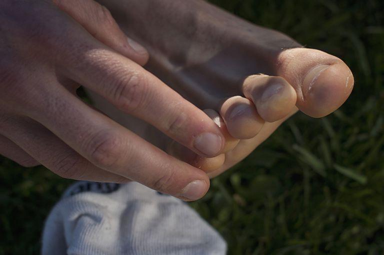 hand och fotblåsor