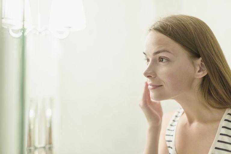 acne vuxen kvinna