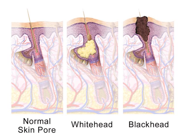vad är acne